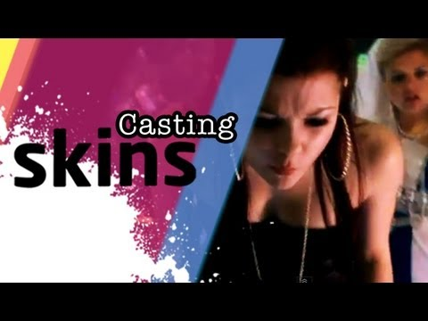 Casting Skins - Episode 8 'In Front Of The Cameras'