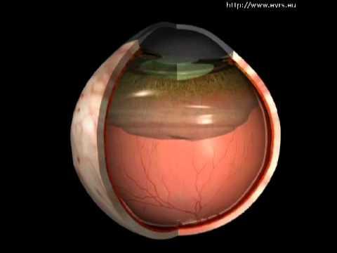 Posterior vitreous detachment