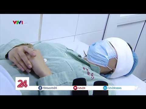 Cắt mí mắt ở spa, thiếu nữ 19 tuổi bị chảy máu suốt 8 tiếng @ vcloz.com