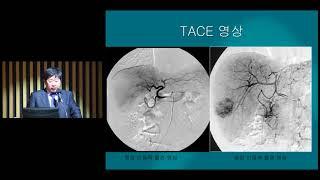 전이성 GIST의 RFA 치료 미리보기