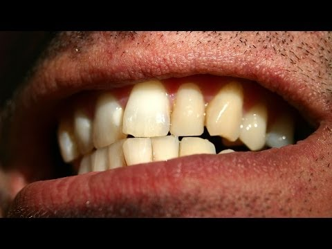 How to Straighten Crooked Teeth | Tooth Care