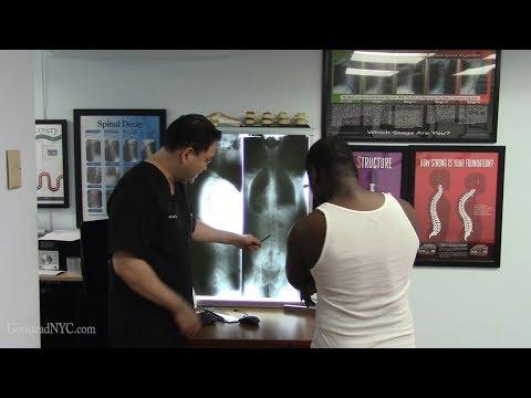 Male infertility, azoospermia - Gonstead Chiropractic