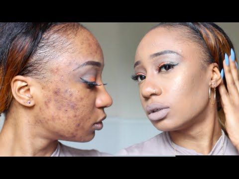 UPDATED Foundation Routine for Acne Scars with COLOR CORRECTING