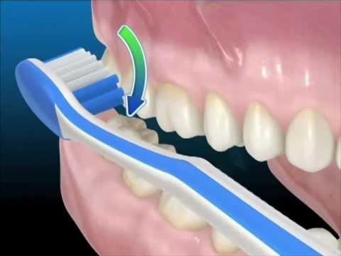 Tecniche di igiene orale: Uso corretto dello spazzolino da denti