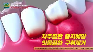 video thumbnail Periodontal disease, Prevention of gum disease, 99.9 percent of bacteria in 30 seconds.a mouth guard youtube