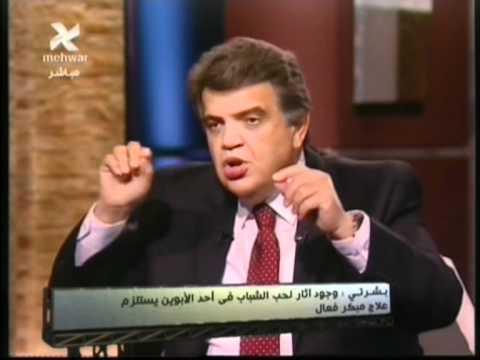 اثار حب الشباب - د.عاصم فرج - بشرتى