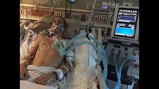 Video Andrew's Story: Guillain-Barré Syndrome MP3, 3GP, MP4, WEBM, AVI, FLV Juli 2018