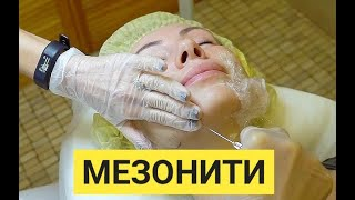 Ставим мезонити для улучшения овала лица