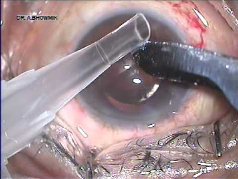 Video Out or In (Explantation of IOL) by Dr.Arup Bhaumik | Disha Eye Hospitals download in MP3, 3GP, MP4, WEBM, AVI, FLV January 2017