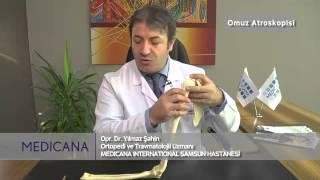 Medicana International Samsun Hastanesi Op. Dr. Yılmaz Şahin Konu: Omuz Atroskopisi