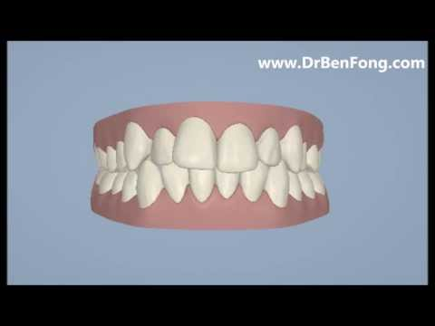Invisalign Results for Daniel A.| Before & After | www.invisalignresults.ca