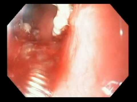 Endoscopic Removal of Eroded Gastric Band