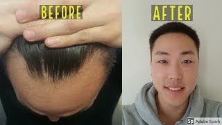 Video 1 YEAR BEFORE & AFTER HAIR TRANSPLANT RESULT! DAY 0 TO DAY 365! MP3, 3GP, MP4, WEBM, AVI, FLV September 2018