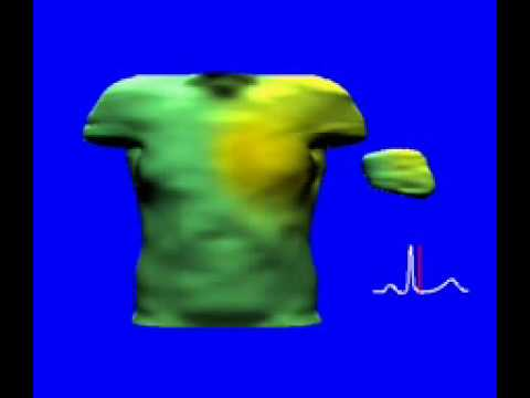 Body surface potential during heart beat