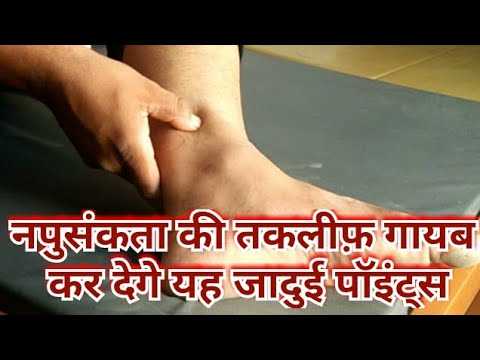 Acupressure For ERECTILE DYSFUNCTION/Acupressure Points For ED/Erectile Dysfunction Treatment  Hindi