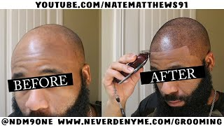 Video How To Get Your Hairline Back | From Bald To Edge Up | Hairline Restoration MP3, 3GP, MP4, WEBM, AVI, FLV Februari 2019