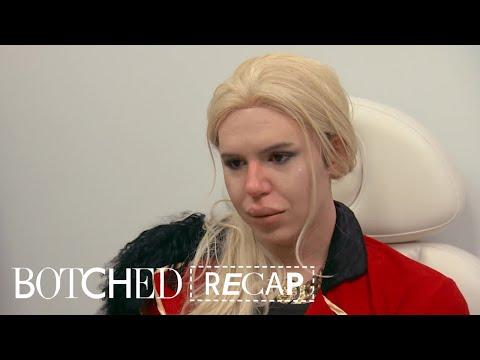 """""""Botched"""" Recap: Season 4, Episode 17   E!"""