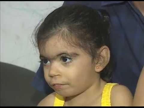 Família presica de ajuda para tratar menina com síndrome rara