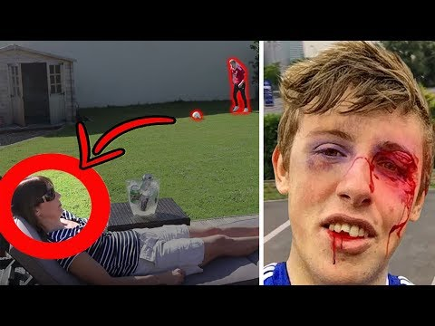 Top 5 ACCIDENTAL Injuries in YOUTUBE Videos (видео)