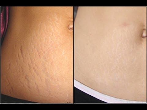 How To Get Rid Of Stretch Marks Fast, Naturally, Easily, Permanently