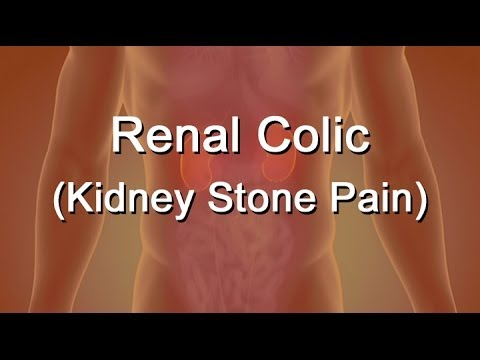 Renal Colic Or Kidney Stone Pain