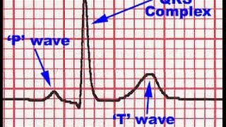 """The """"QRS complex"""" is the combination of the Q wave, R wave and S wave and represents ventricular depolarization. This term can be confusing since not all ECG leads contain all three of these waves, yet a """"QRS complex"""" is said to be present regardless. For example, the normal QRS complex in lead V1 does not contain a Q wave, but only a R wave and S wave, yet the combination of the R wave and S wave is still referred to as the QRS complex for this lead.---------------------------------------------Watch ECG The P Wave HD.......http://goo.gl/7dbwjzWatch ECG P-R Interval HD.......http://goo.gl/Pl0guwWatch ECG QRS complex HD......http://goo.gl/cKUV3LWatch ECG The T Wave HD........http://goo.gl/t5qhreWatch ECG The U wave HD ......http://goo.gl/HX5lMp---------------------------------------------SUBSCRIBE and LIKE ......   http://goo.gl/c8vHHgBest Medical Books Link Below-----   http://goo.gl/XHvpZABest Medical Instrument Link Below-----   http://goo.gl/pW1PZt----------------------------Find us on Facebook :https://www.facebook.com/groups/354791764704980/https://www.facebook.com/Medicalvideosfordoctorshttps://www.facebook.com/freemedicaltextbooksJoin Our Forum: http://www.medicalbook.org"""