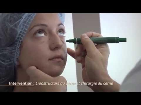 Comment appliquer hirucreme ? La réponse est sur Admicile.fr