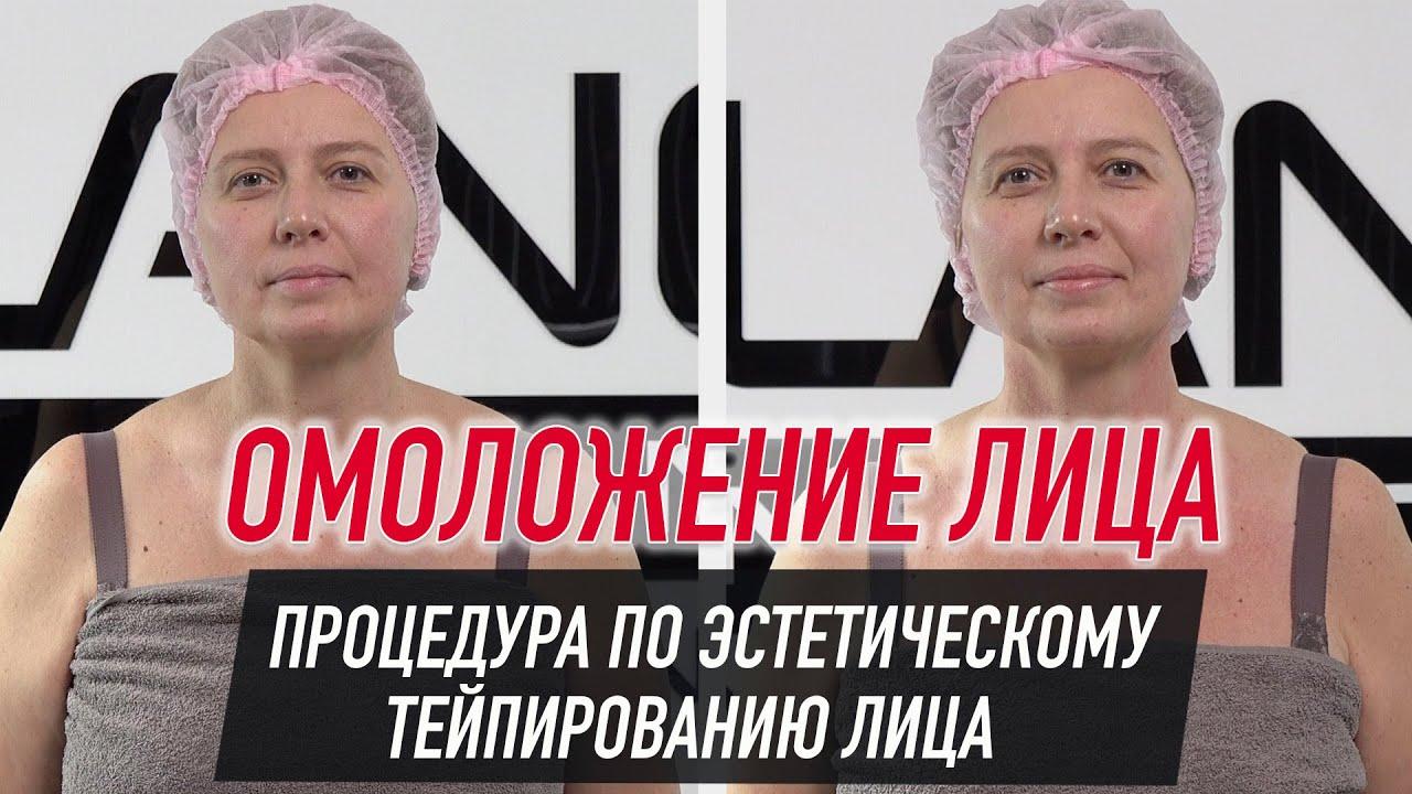 Тейп для лица BB FACE TAPE™ 5 см × 5 м шелк розовый Фото 7