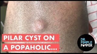 """A Pilar Cyst, aka a trichilemmal cyst, an isthmus-catagen cyst, or a """"wen"""", looks identical on examination to the more common epidermoid cyst, except that 90% of them occur on the scalp. They tend to be more mobile and firmer than epidermoid cysts, and are derived from a different part of the hair follicle/skin.  The internal content tend to be more """"homogenous""""/ smooth (looks different under the microscope), but it is also a benign growth.  It is not uncommon to have multiple pilar cysts on the scalp and to have other family members to have these cysts (tend to run in families). Treatment is for cosmetic reasons usually (people don't like the appearance of them), and excision with removal of the cyst and it's contents is curative. To buy your own Official Dr. Pimple Popper Comedone Extractor, click here:http://www.drpimplepopper.com/shopTo learn more about my skincare line - SLMD Skincare - click here:www.slmdskincare.comSubscribe to my Dermatology educational channel, Dr Pimple Popper University!  Link is here: https://www.youtube.com/channel/UCvaD01Jb_ruxsAcVqVmTHzQFor more content, exclusive content, and of course to get more Dr. Pimple Popper schwag, visit us at www.drpimplepopper.com!Instagram:       @DrPimplePopper for 24/7 pops      @DrSandraLee for my work, my life, my popsFacebook: facebook.com/DrPimplePopperTwitter: @SandraLeeMDSnapchat: drpimplepopperPeriscope: Dr. Sandra LeeYou can watch my TV appearances here: https://www.youtube.com/channel/UCOixDRVQAsKe4STSuWU8U0QThis video may contain dermatologic surgical and/or procedural content. The content seen in this video is provided only for medical education purposes and is not intended to be a substitute for professional medical advice, diagnosis, or treatment."""