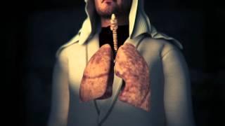 التدخين - Smoking