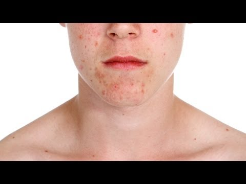 What Is Proactiv? | Acne Treatment