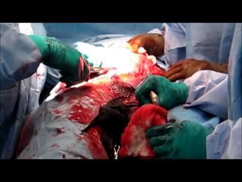Video C Section download in MP3, 3GP, MP4, WEBM, AVI, FLV January 2017