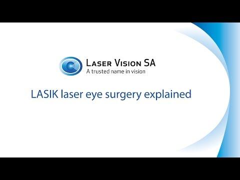 LASIK Laser Eye Surgery Explained