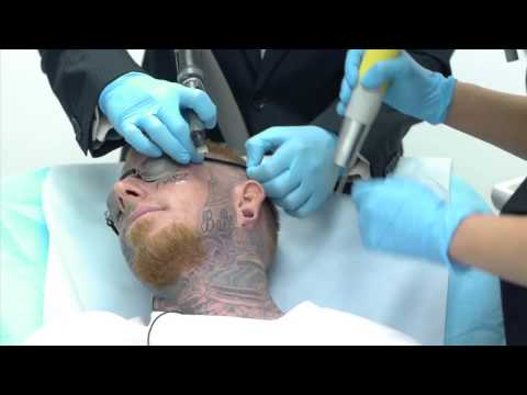 tattoo - See the story and then watch the footage of a man with tattoos all over his face as he undergos his first laser tattoo removal treatment. It's heartwarming, ...