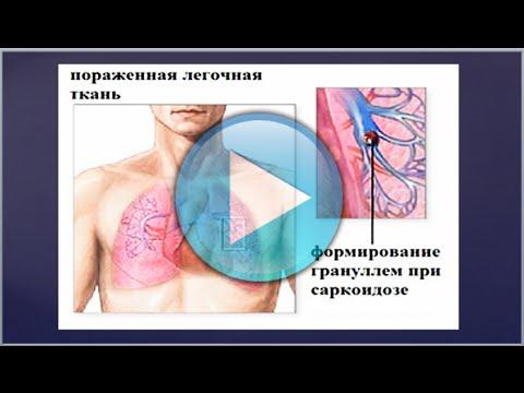Лучуние саркоидоза народными методами