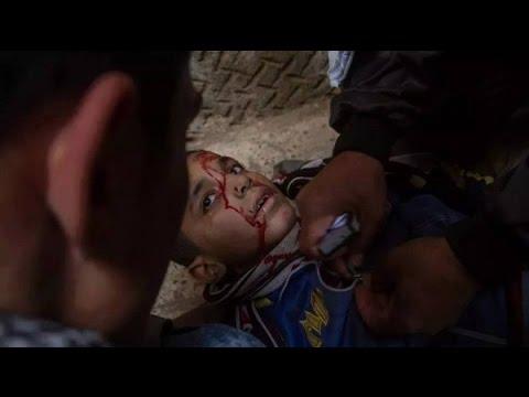 قصة صورة| الطفل «مينا» ضحية مظاهرات «الإخوان» في ذكرى الثورة