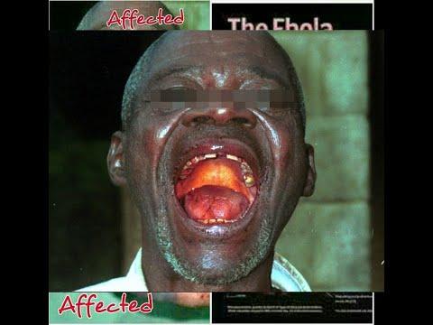 Virus Ebol