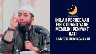 Download Video Ternyata Inilah perbedaan fisik orang yang memiliki penyakit hati-Ustadz Khalid Basalamah MP3 3GP MP4