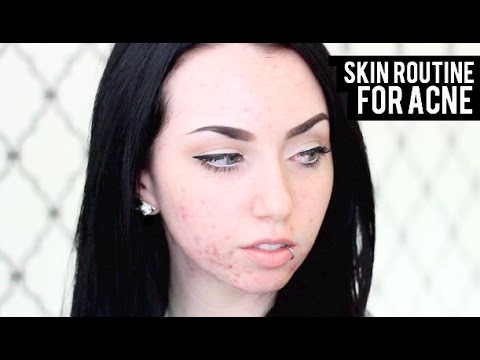 SKINCARE ROUTINE FOR ACNE PRONE SKIN + MY ACNE STORY