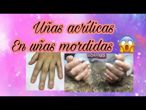Decorados de uñas - Uñas acrílicas en uñas mordidas