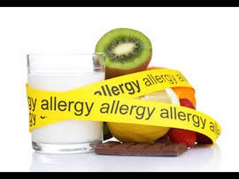 Food Allergies | How To Prepare For Your Child's Dental Visit | #parents #health