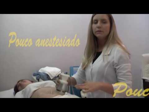 Momento Saúde Specialité - Criolipólise e Striort