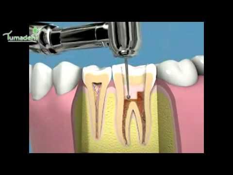 Come usare gli strumenti per la pulizia dentale. Spazzolino, filo interdentale ecc... - Tumadent