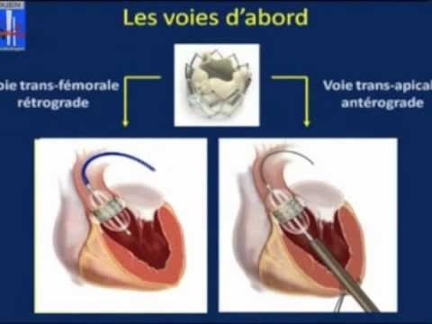 17-implantation.percutanee.d.une.valve.aortique