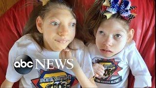 Video Kansas Parents of 2 Girls With Microcephaly Share Joys, Struggles of Family Life MP3, 3GP, MP4, WEBM, AVI, FLV Maret 2019