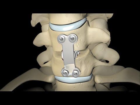 Back Surgery: Spinal Fusion 