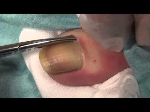 這個超血腥「凍甲手術」讓你清楚看到抽出腐爛趾甲的過程,看到最後卻讓人覺得舒壓啊!