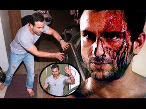 Saif-Ali-Khan-INJURED-While-Shooting-Rangoon-On-Location-Babita-Kapoor-Shahid-Kapoor-Kangana