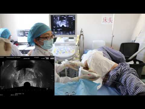 Trans rectal exam and  prostate biopsy with Ultrasound Needle Guides