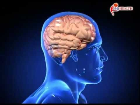 MyHEALTH : Migrain
